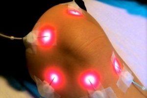 Внутривенное лазерное облучение крови