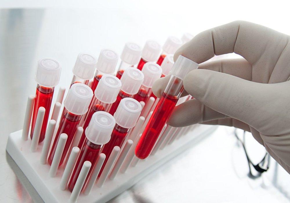 Низкий гемоглобин у женщин: причины и последствия