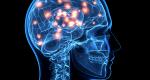 Субарахноидальное кровоизлияние головного мозга
