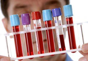 ФПП анализ крови: расшифровка