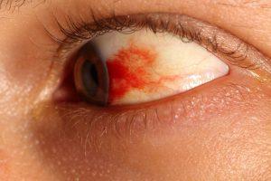 Капиллярное кровотечение