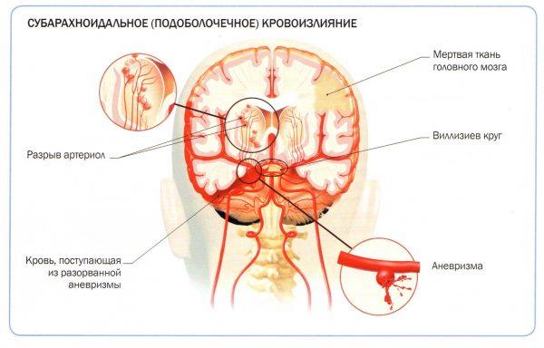 Как выглядит субарахноидальное кровоизлияние головного мозга
