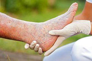 лечение тромбофлебита нижних конечностей в домашних условиях