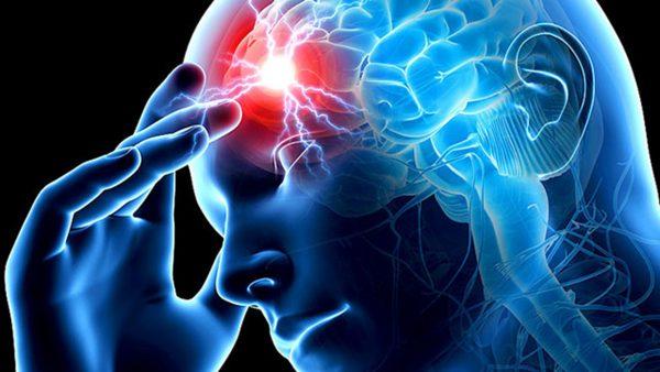 Как выглядит нарушение мозгового кровообращения