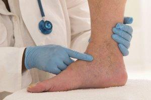 Воспаление вен нижних конечностей: лечение, причины и профилактика