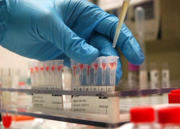 1 отрицательная группа крови: характеристика