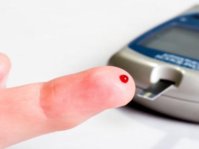 Глюкозотолерантный тест: результаты, норма