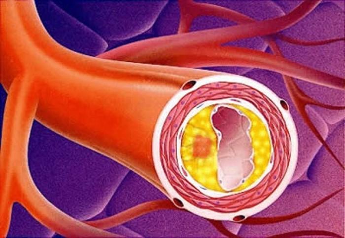 Уплотнение аорты сердца что это такое