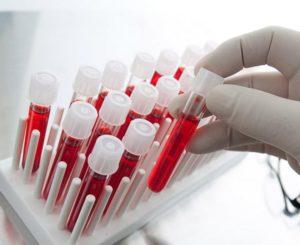 О чем говорит повышение билирубина в крови