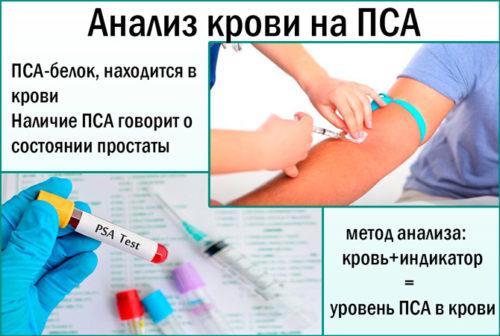 Анализ крови на не4 что это такое и каковы нормальные значения