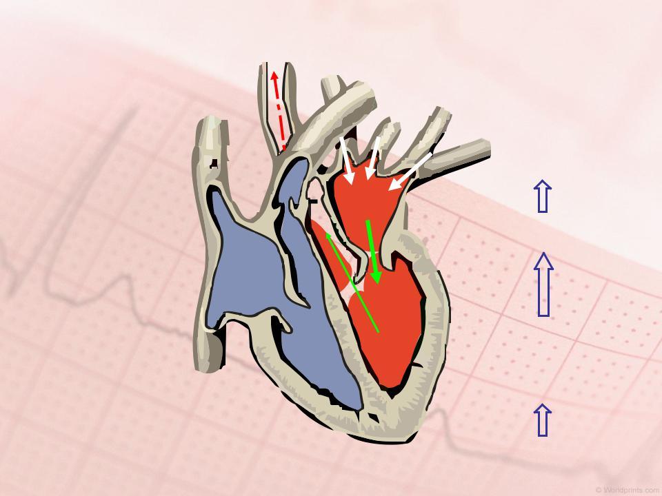 Особенности аортальной недостаточности и её степени