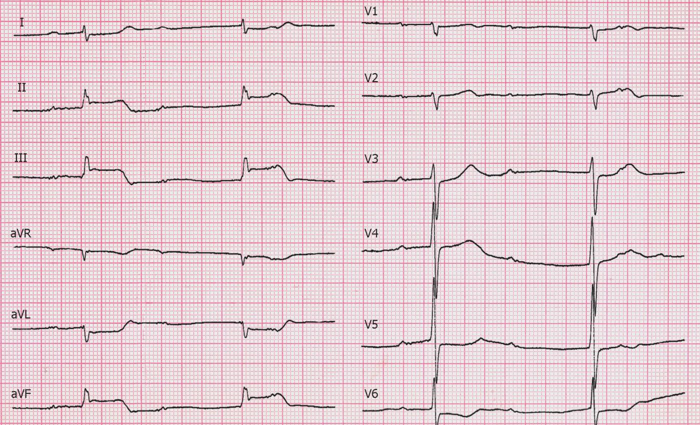 положительные впечатления фото кардиограммы с инфарктом достаточно увлажнит эпидермис