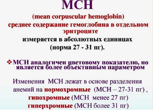mcv-1
