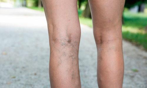 Вены на ногах выступают лечение