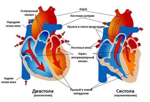 diastila sistola