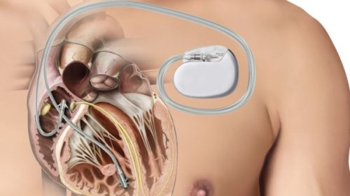 kardiostimuljator
