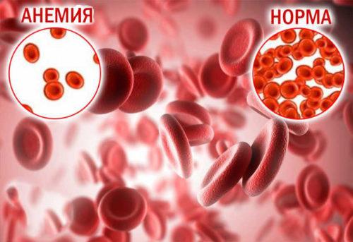 Смерть при низком гемоглобине