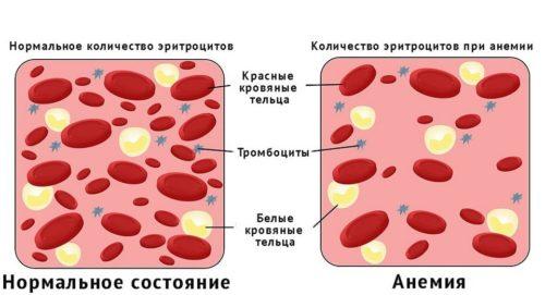 Падает гемоглобин причины у взрослого