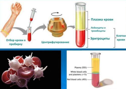 Если повышены одновременно гемоглобин и эритроциты
