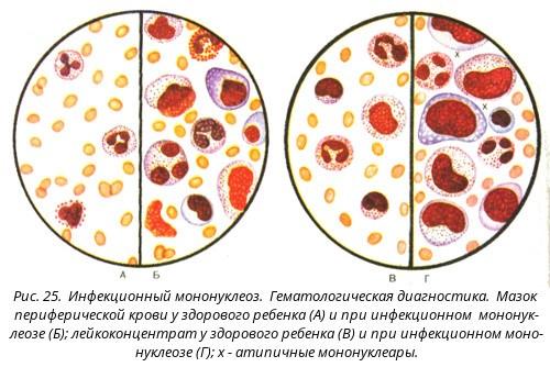 infekcionnyy-mononukleoz mazok