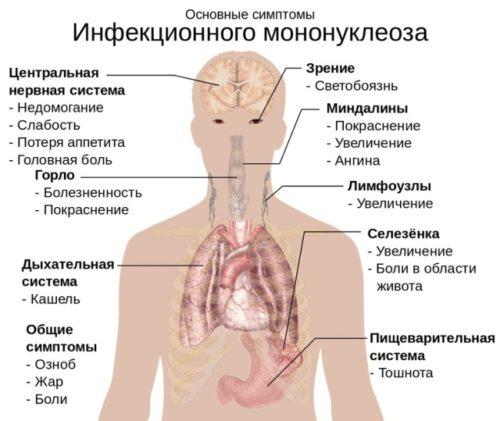 mononucleos simptomy