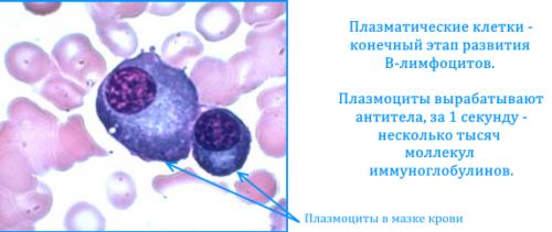 plazmocity