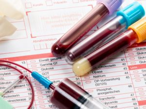 РОЭ в анализе крови