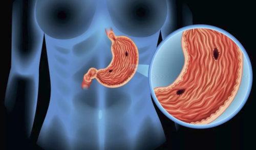 Продукты повышающие гемоглобин при язве желудка thumbnail