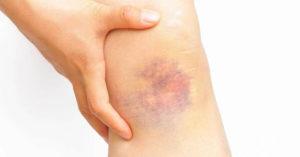 Синяки на ногах без причины у женщин и мужчин: причины появления, лечение