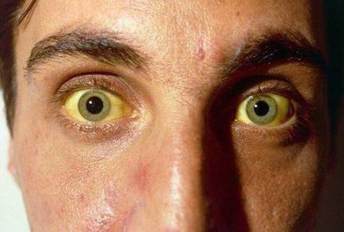 заболевание желтухой
