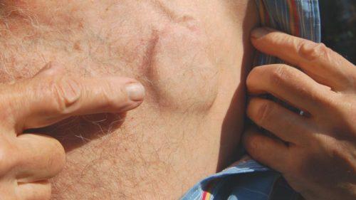 кардиостимулятор в теле человека
