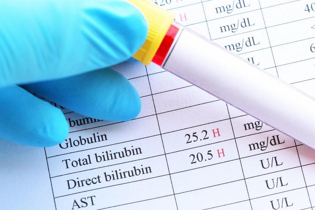 Как можно быстро и эффективно снизить уровень билирубина в крови