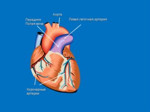 Легочная артерия сердца