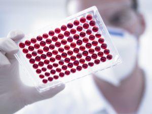Серологический анализ крови