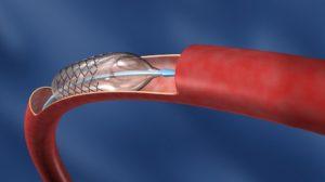 Ангиопластика и стентирование артерий