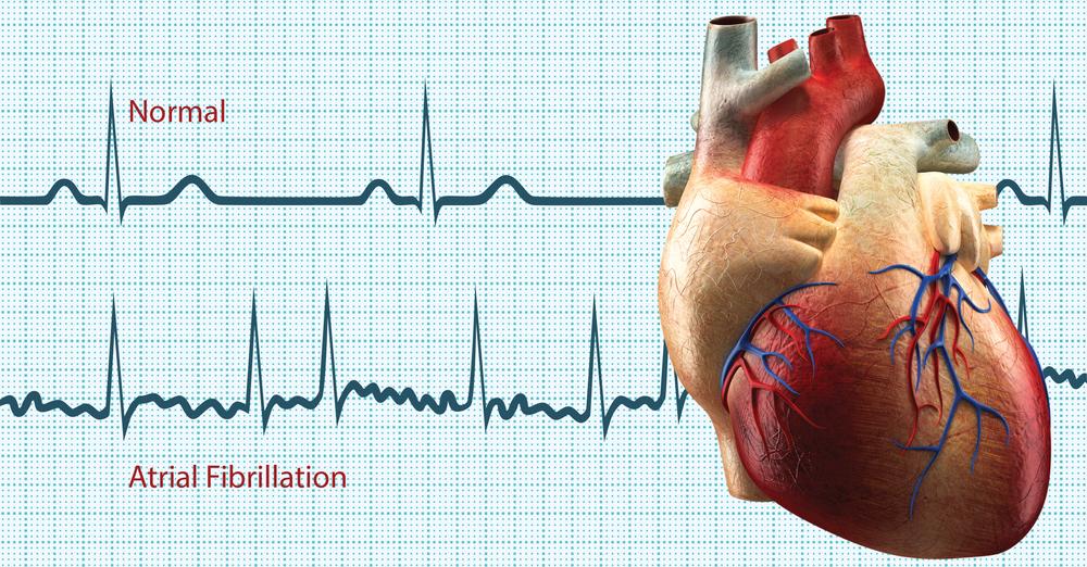 Картинки сердце аритмии